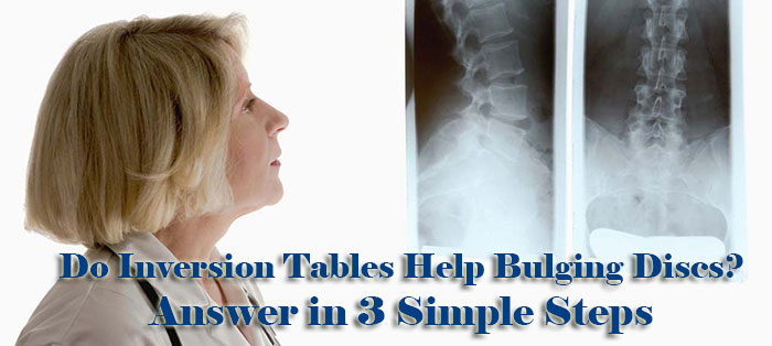 Do Inversion Tables Help Bulging Discs