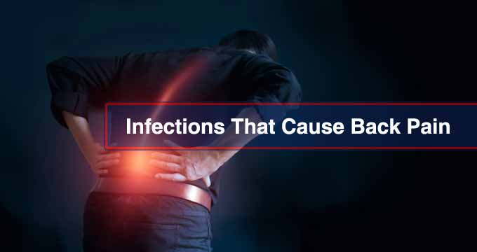 Infections That Cause Back Pain